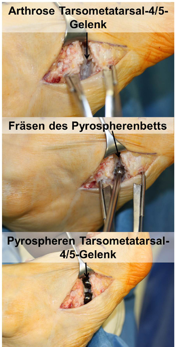 Implantation von Pyrospheren
